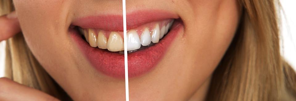 Cos'è e come funziona lo sbiancamento dentale