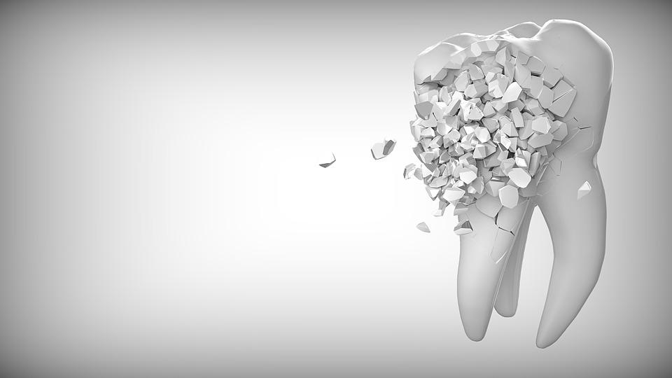 La Parodontite: come prevenire e curare questo problema
