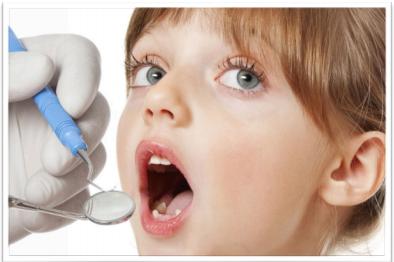 La prevenzione dei denti permanenti nei bambini